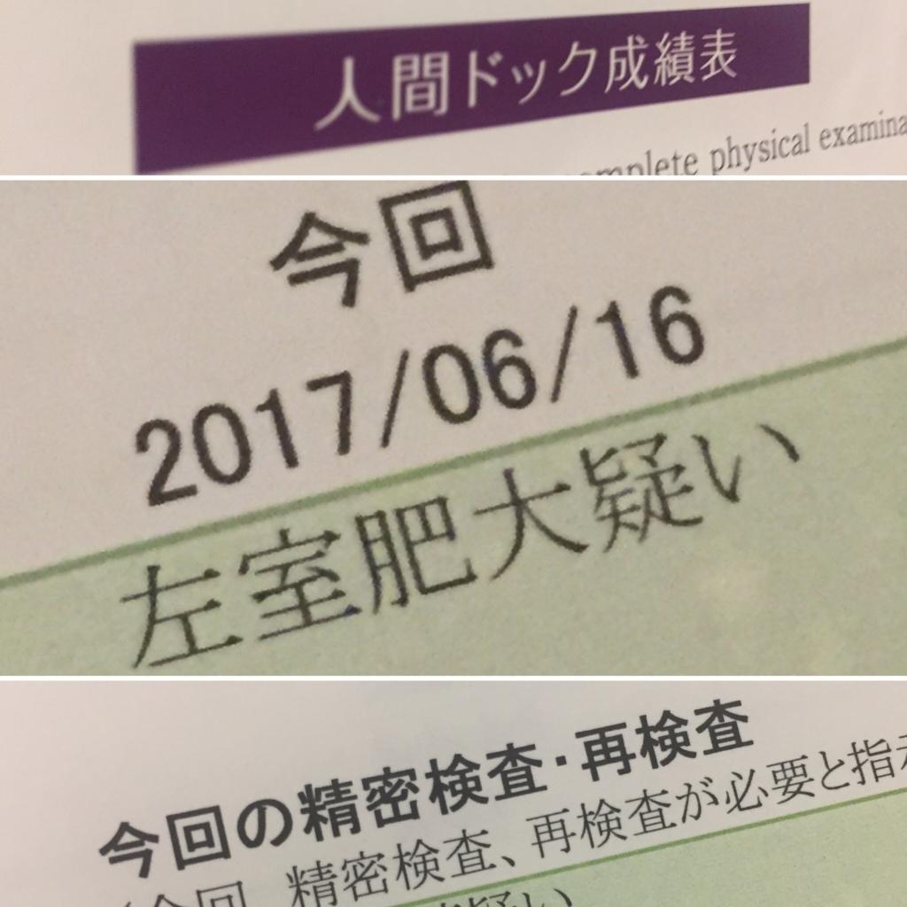f:id:ichikawa-papa:20170705000220j:plain