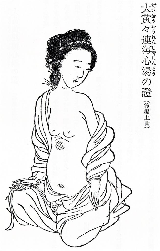 f:id:ichinokai-kanazawa:20180212154709j:plain