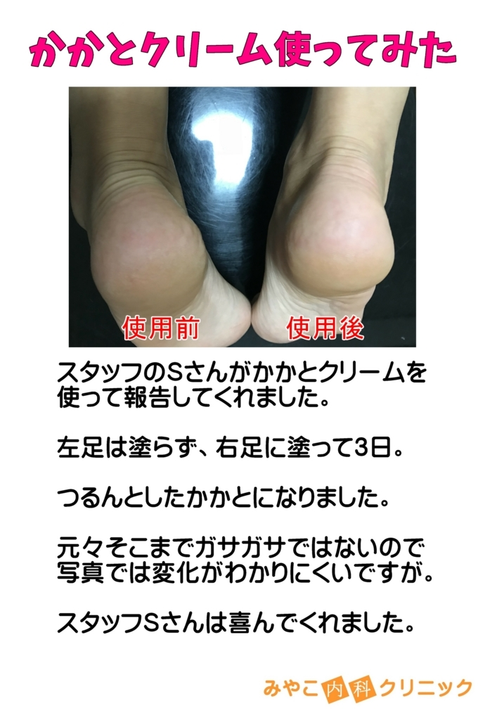 f:id:ichiro-ishiguro:20171109111621j:plain