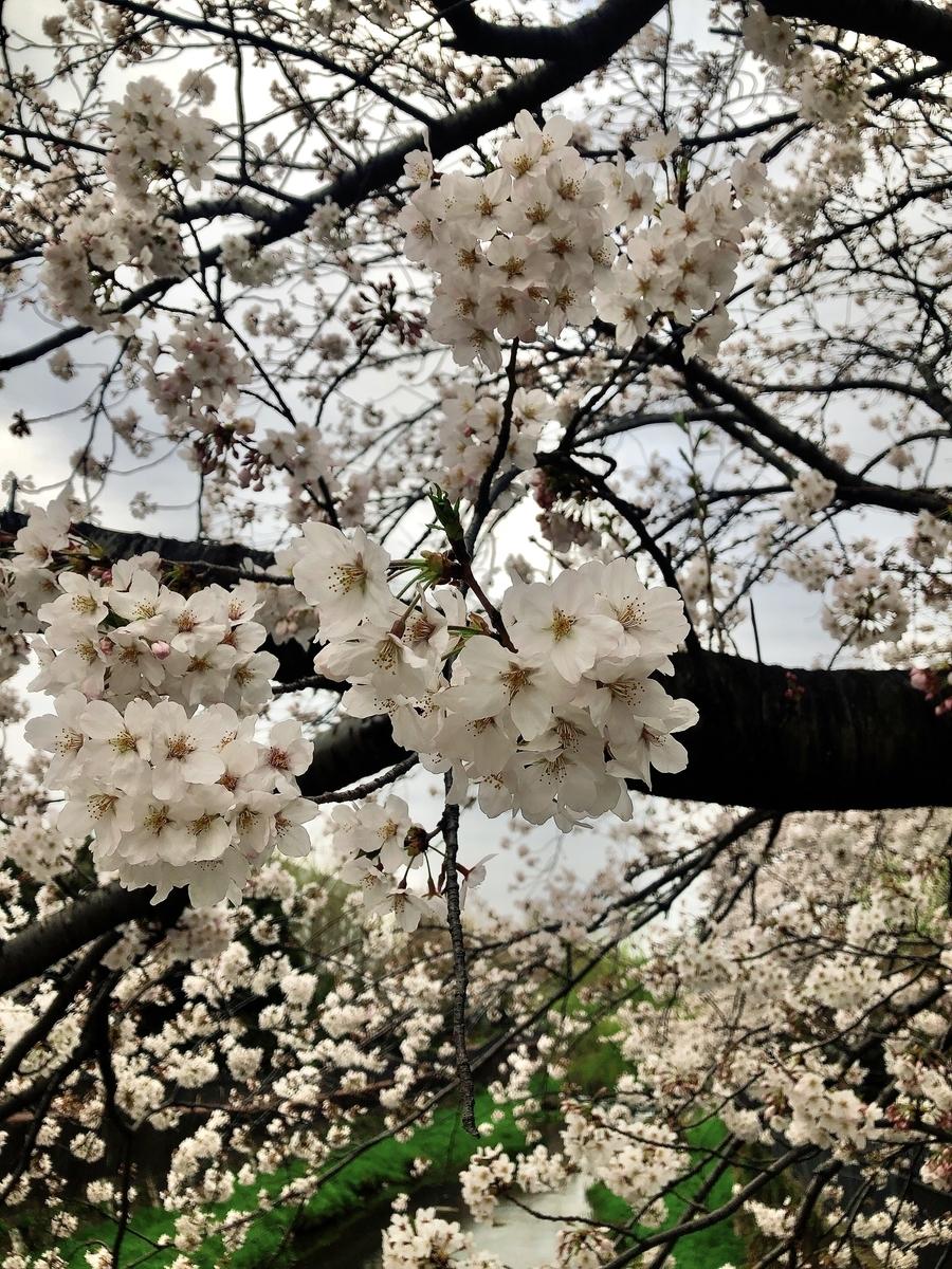 f:id:igarashi-shika-staff:20210326160557j:plain