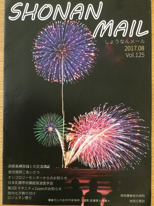 f:id:igarashi-shika:20170910150051j:image:w360