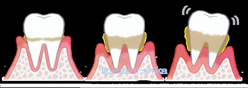 f:id:igarashi-shika:20181202113000p:image:w360