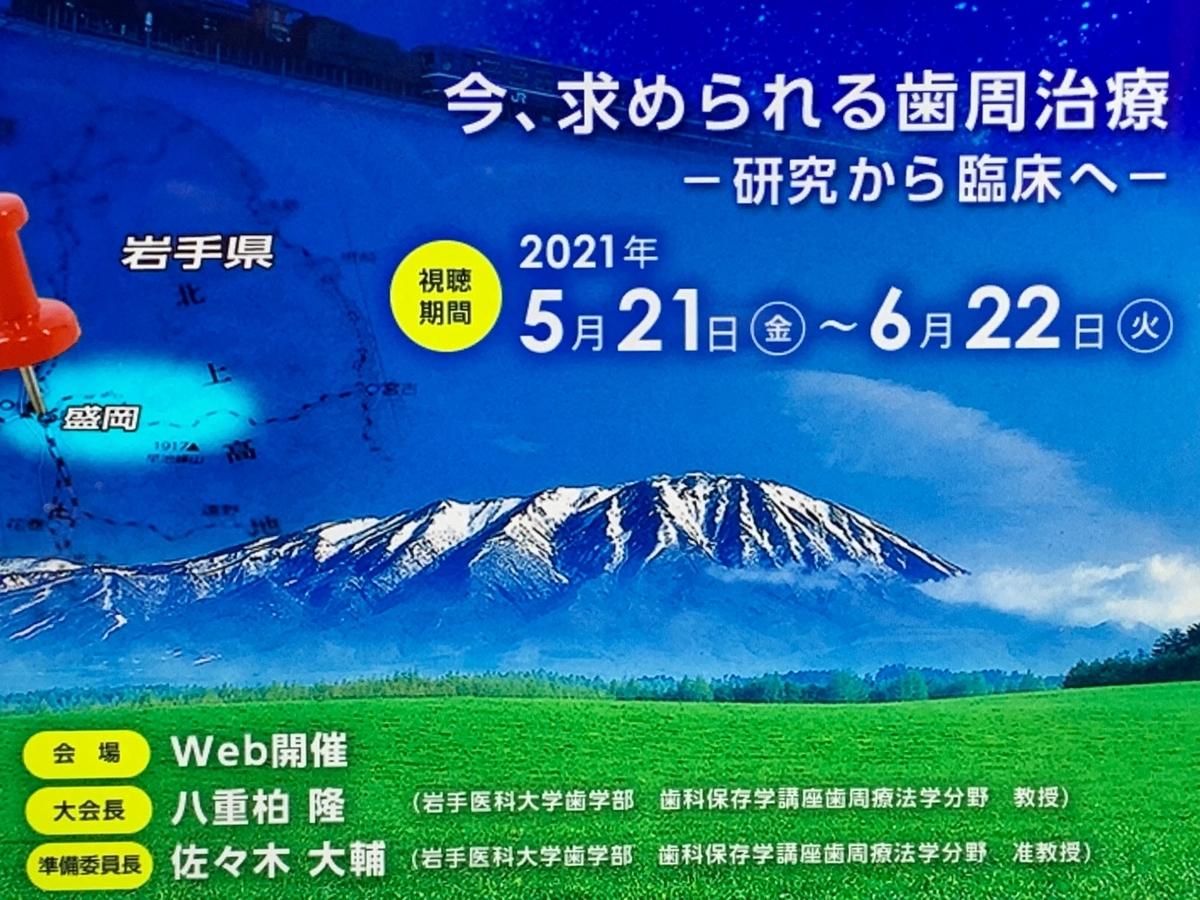 f:id:igarashi-shika:20210621112716j:plain