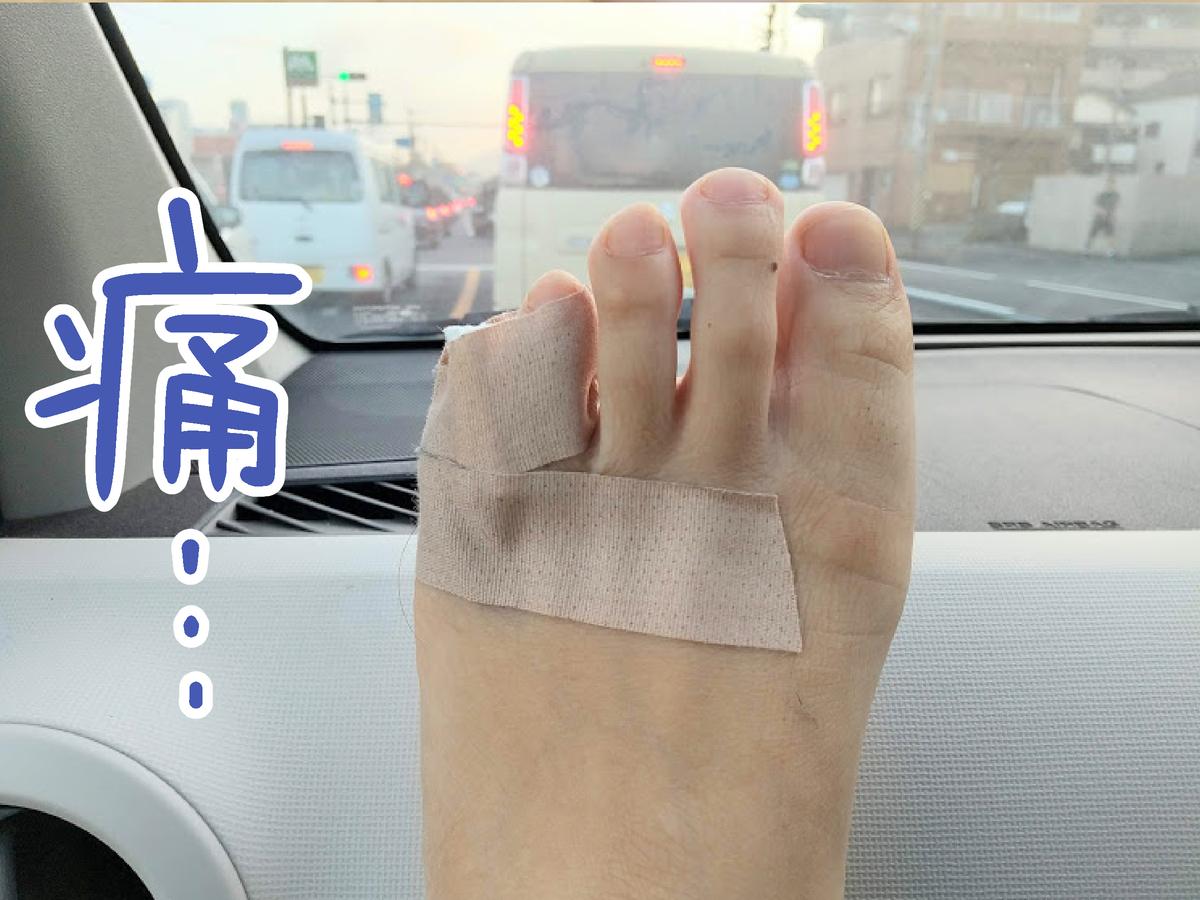 足の小指が