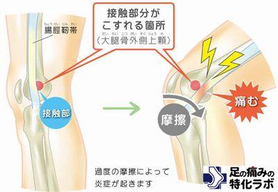 腸脛靭帯炎。