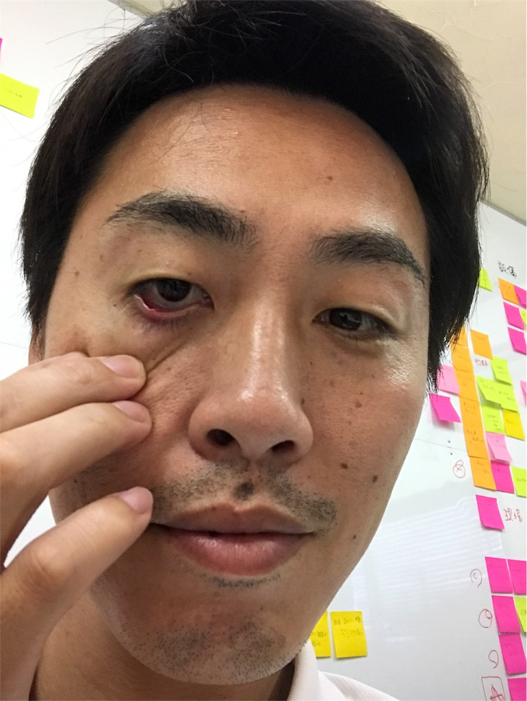 f:id:ikemotomasaru:20170623062807j:image