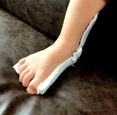 幼児の骨折:ギプス装着(横から見た図)