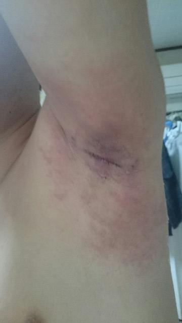 わきが手術後5日目