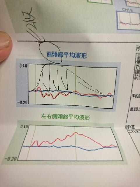 光トポグラフィー検査結果