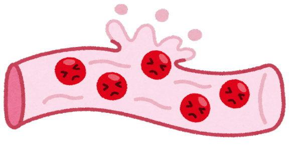 ちょっとの衝撃で、人は大量の血を流す
