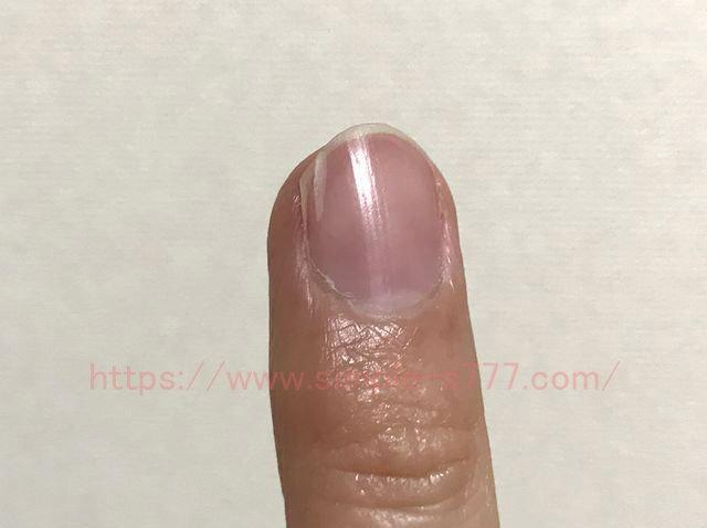 ほかの爪は割れやすいです。貧血だと爪が割れやすくなります