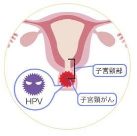 f:id:immunityup:20180212221419j:plain