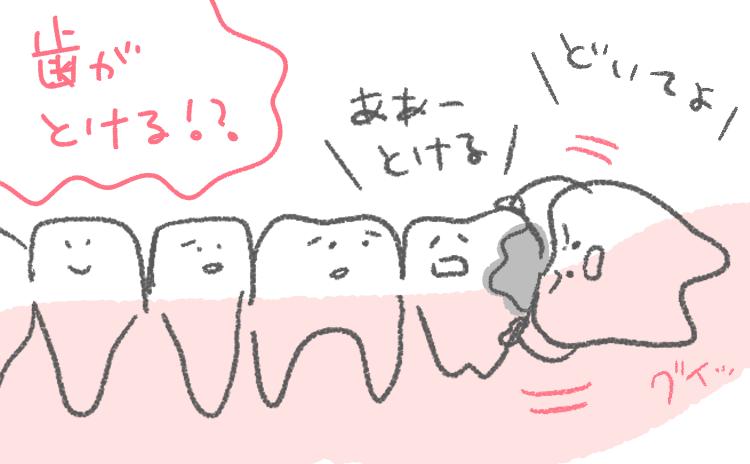 イラスト エッセイ レポ 親知らず 横向き 横 抜歯 歯 隣の歯 溶ける とける 押す 押される