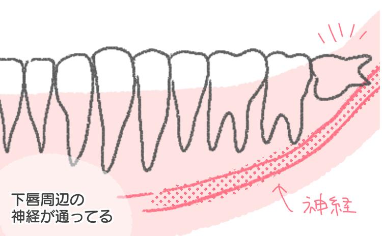イラスト レポ 抜歯 歯 親知らず 神経 当たる 当たってる 奥歯 下唇 レントゲン