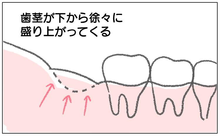抜歯 親知らず レポ 漫画 ブログ 体験談 歯 抜く 抜いた後 歯茎 食べカス 食べかす どうなる 埋まる ふさがる 塞がる 盛り上がる