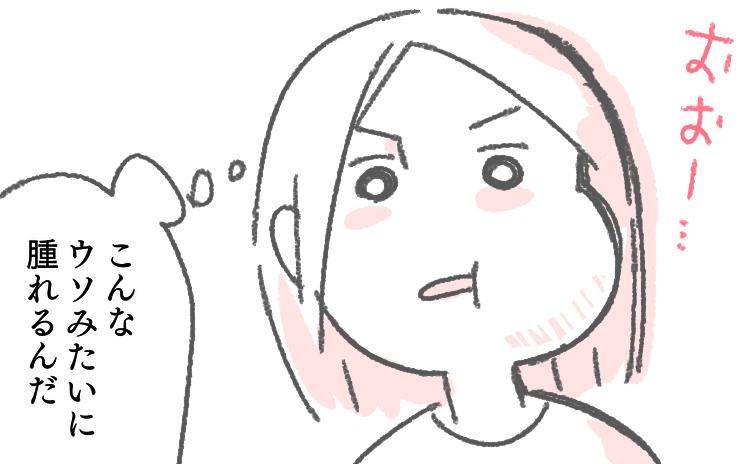 イラスト ブログ 体験談 抜歯 親知らず 腫れ 腫れる はれる 頬 ほっぺ 顔