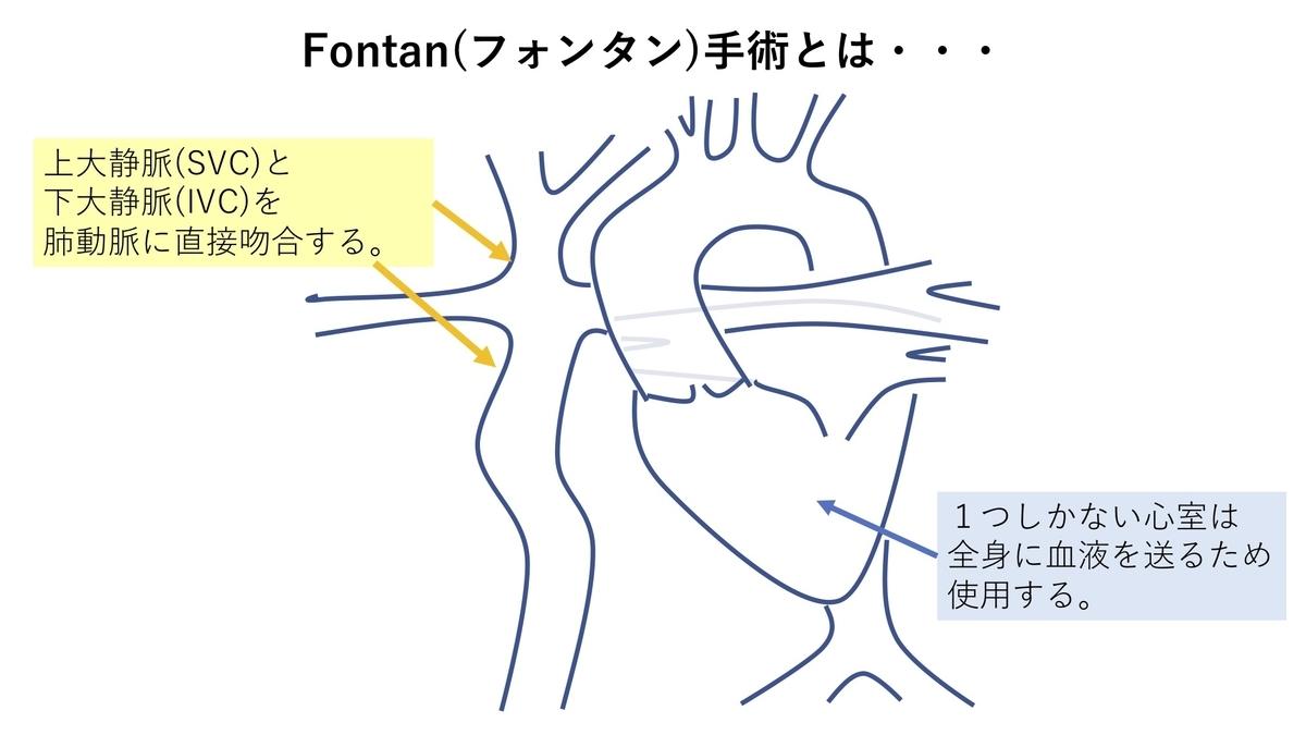 f:id:inishi:20190319153114j:plain