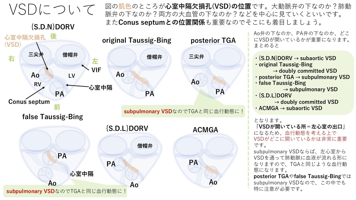 f:id:inishi:20210415125044j:plain