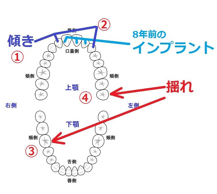 f:id:intertechtokyo:20180212220441j:plain