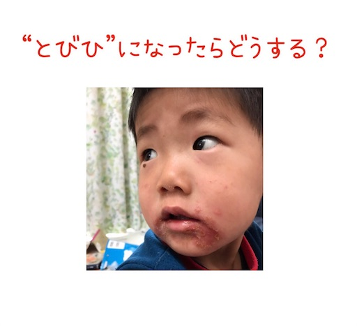 f:id:ishiimachiko141hair:20190614155452j:image