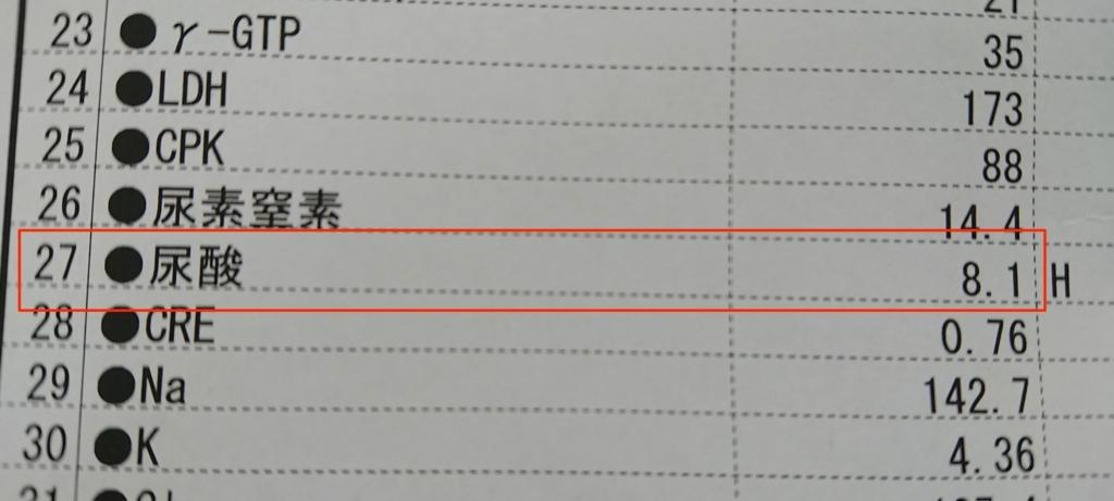 f:id:ishimotohiroaki:20170720104833j:plain