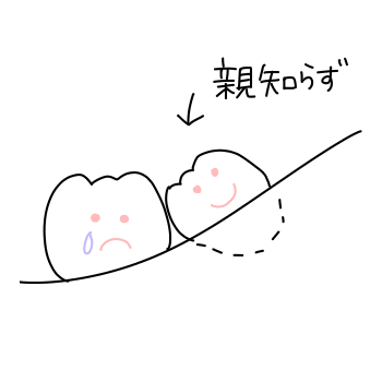 f:id:isomemayu:20171005134329p:plain