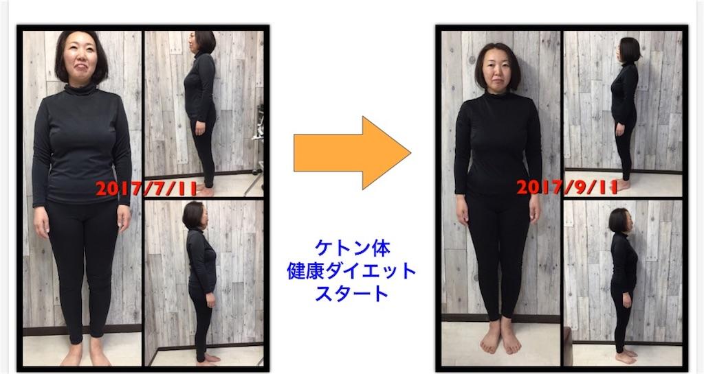f:id:itomakimaki523:20170914132210j:image