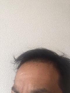 f:id:iuyoiti:20180506103504j:plain
