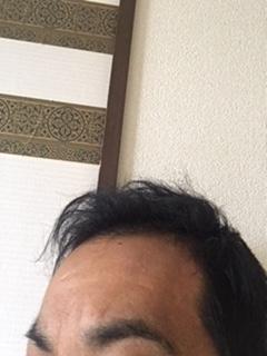 f:id:iuyoiti:20180513092424j:plain