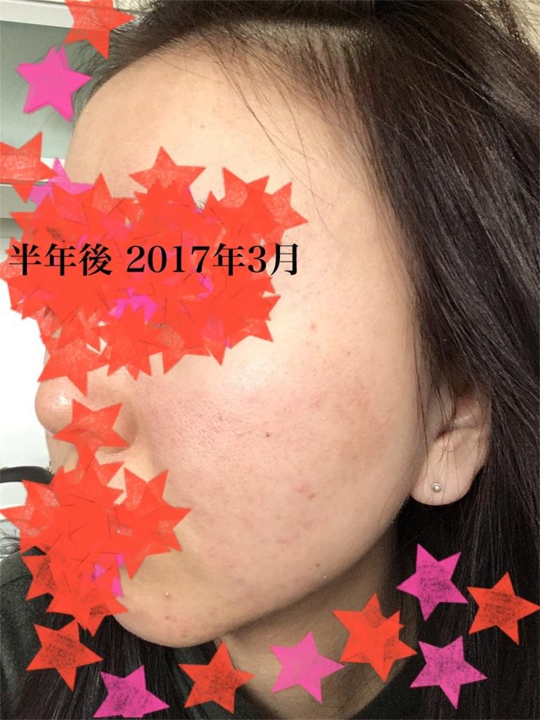 f:id:iwashi27:20180702221615j:image
