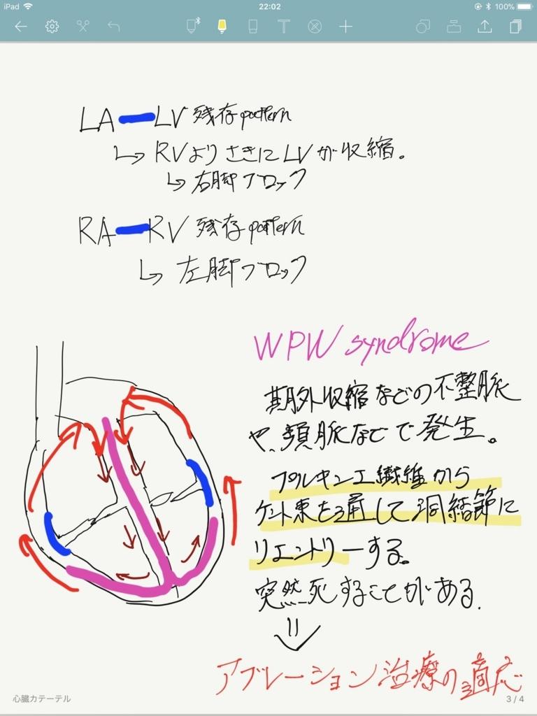 f:id:iwataro:20180506221256j:plain