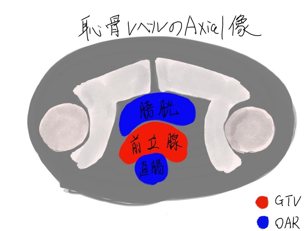 f:id:iwataro:20180816025100j:plain