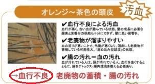 f:id:japanese-standard0:20170212211118j:plain