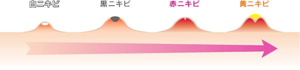 f:id:japanese-standard0:20170219223848p:plain