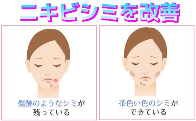 ニキビシミ改善のイメージ画像