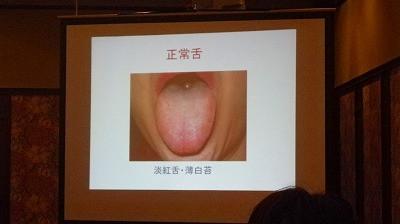 舌診の勉強