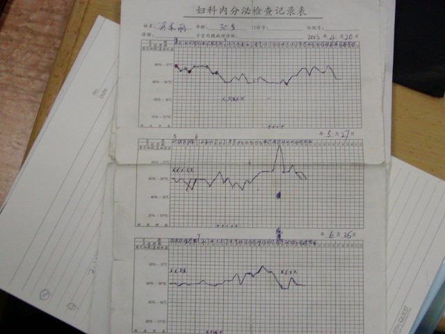 中国での不妊症研修、南京
