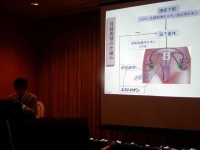 不妊症の講演のスライド