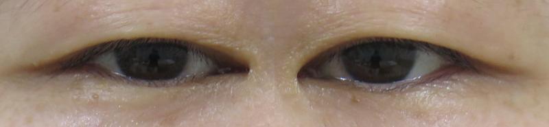 眼瞼下垂手術前 ビフォー 秋葉原シティクリニック