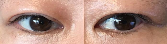 眼瞼下垂手術(保険適用)3ヶ月経過写真/一重に戻ったけど自然で悪くない