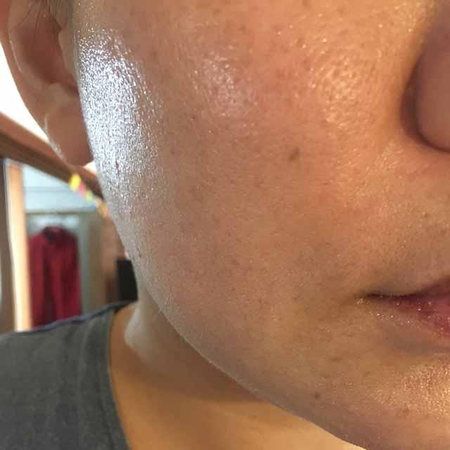 パフェットゲルファンデーションは日焼け止めに負ける敏感肌さんにオススメの理由その3:保湿力高め、カバー力弱め、つまりは厚塗りの息苦しさなし