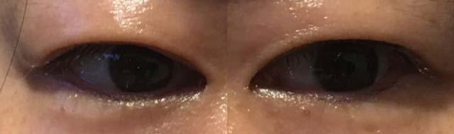眼瞼下垂手術(保険適用)術後3ヶ月