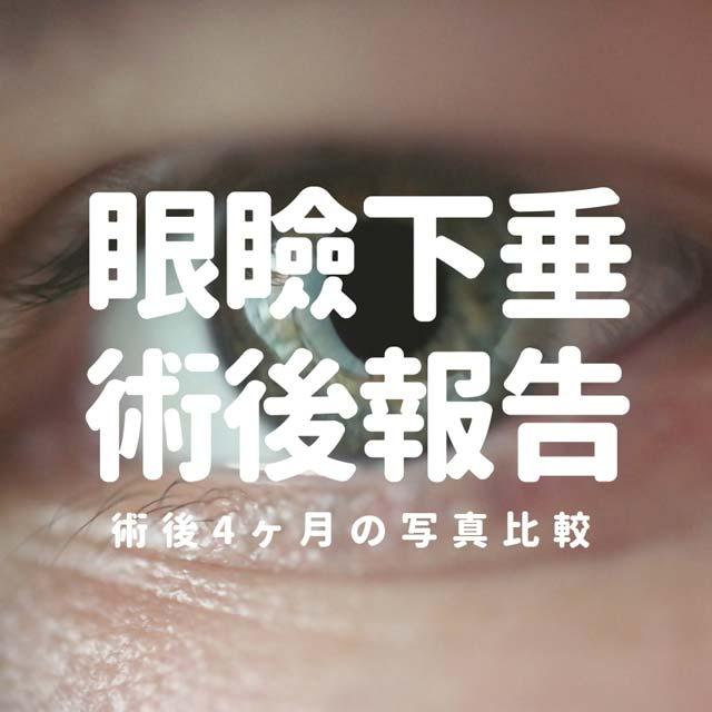 眼瞼下垂保険適用手術の手術代は?術後4ヶ月までの経過写真まとめ
