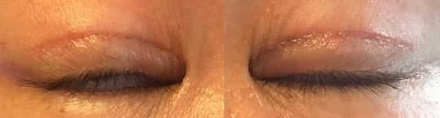 眼瞼下垂手術術後1ヶ月