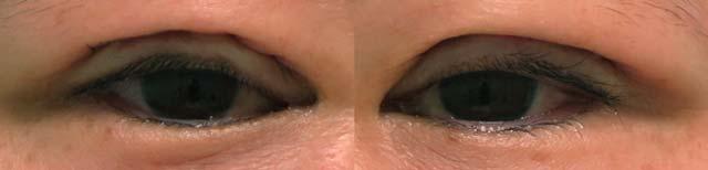 眼瞼下垂保険適用手術の術後4ヶ月までの経過写真|傷跡はほぼまぶたにしびれ残る
