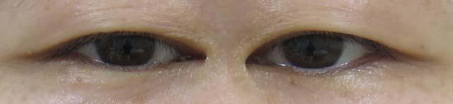 眼瞼下垂手術前の状態 眼瞼下垂保険適用手術の術後4ヶ月までの経過写真|傷跡はほぼまぶたにしびれ残る