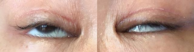 眼瞼下垂手術術後2ヶ月