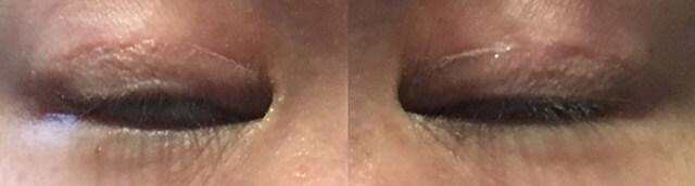 眼瞼下垂手術術後3ヶ月