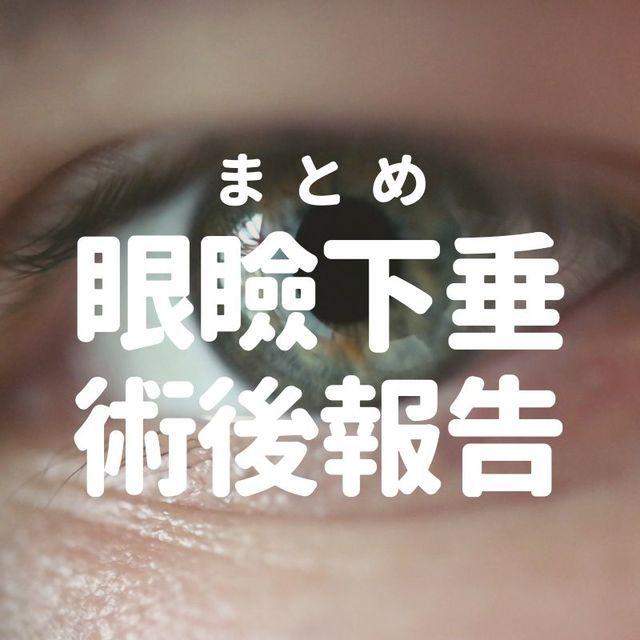 【まとめ】眼瞼下垂保険適用手術から1年|術後経過と後悔している点
