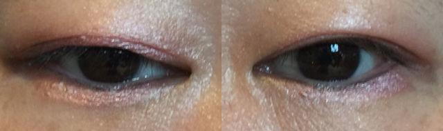 眼瞼下垂保険適用手術後、経過1年の写真